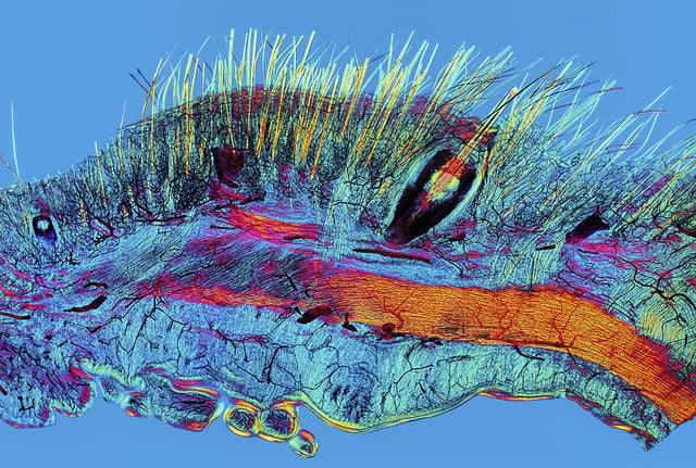 wellcome image awards 2017 b0010780 cat skin showing hairs  a whisker and the