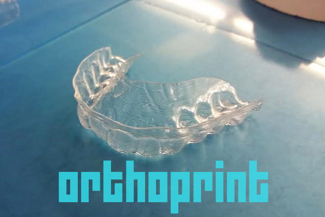3d printed invisalign braces 004